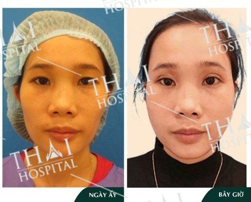Khách hàng trước và sau khi cấy mỡ thái dương tại THAI Hospital