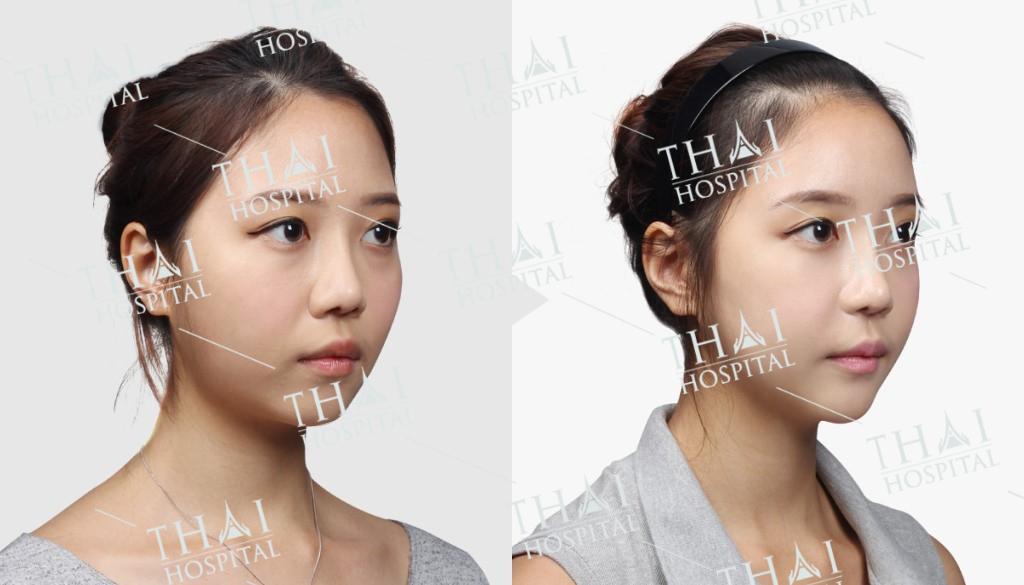 Cấy mỡ thái dương sẽ giúp tạo hình gương mặt được cân đối, không lõm vùng thái dương