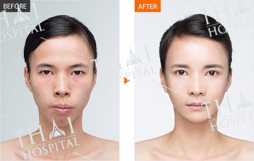 Sở hữu gương mặt cân đối, hài hòa sau khi cấy mỡ tự thân vùng thái dương tại THAI Hospital