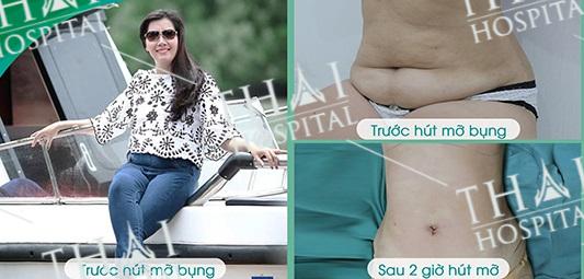 Khách hàng sau khi thực hiện combo hút mỡ và căng da bụng tại THAI Hospital đều rất hài lòng