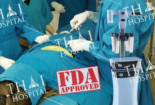 Công nghệ hút mỡ vùng vai tại THAI Hospital được chứng nhận an toàn bởi FDA