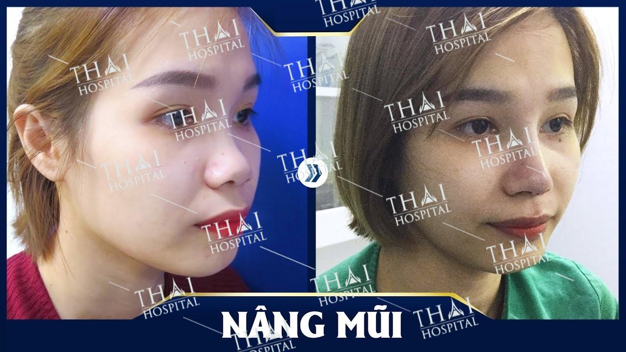 Khách hàng tại THAI Hospital sau khi tiến hành nâng mũi bán cấu trúc