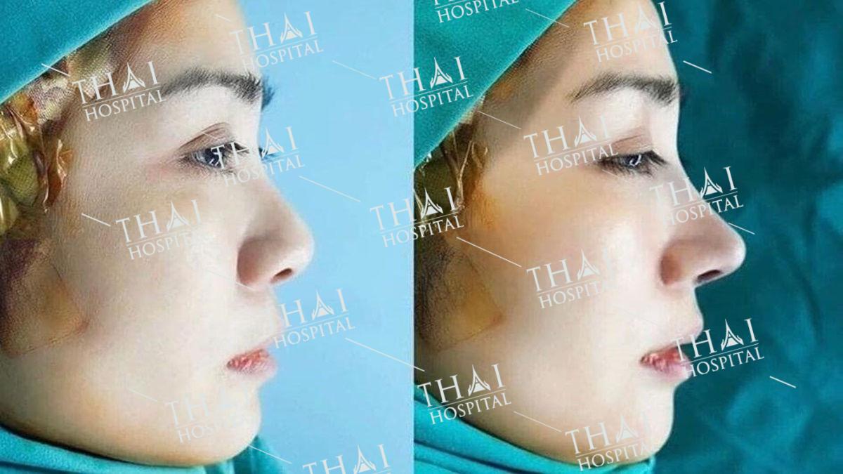 Chiêm ngưỡng dáng mũi khách hàng trước và sau khi nâng mũi sụn Surgiform