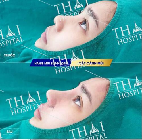 Khách hàng hoàn toàn hài lòng với dáng mũi sau khi nâng từ sụn Surgiform tại THAI Hospital