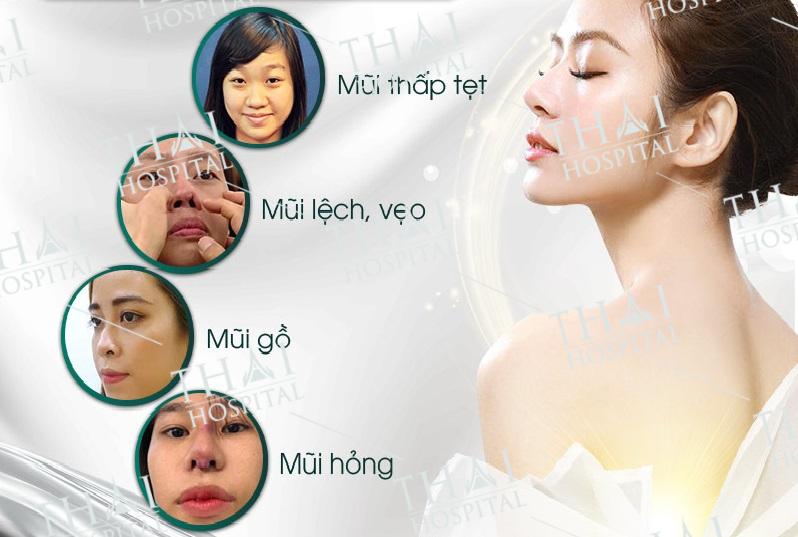 Bất cứ ai có nhu cầu làm thon gọn hay khắc phục khuyết điểm trên mũi đều có thể tham khảo nâng mũi sụn Surgiform