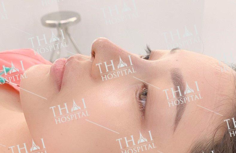 Giá nâng mũi sụn Surgiform tại THAI Hospital cạnh tranh nhất thị trường