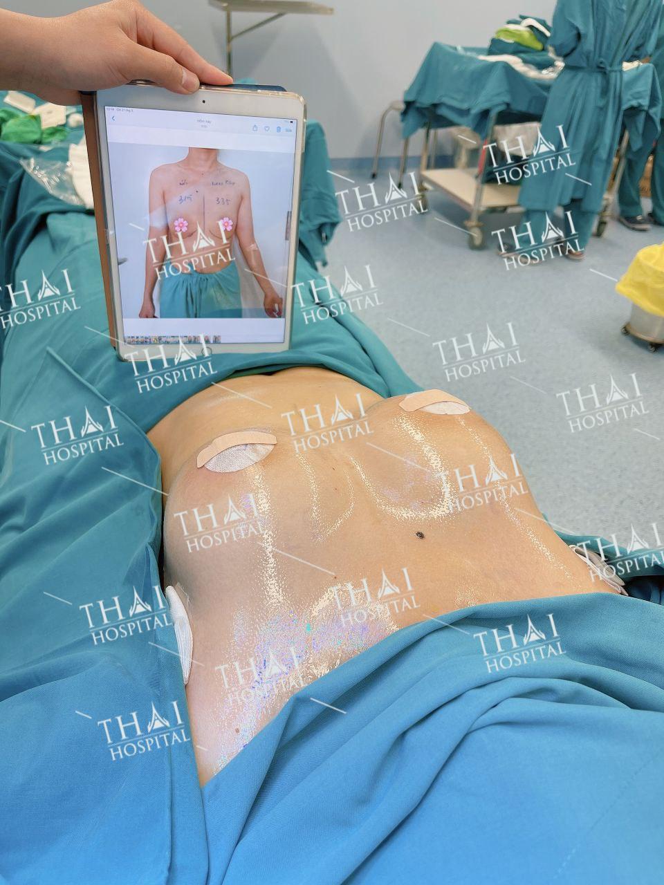 Nâng ngực sửa túi tại THAI Hospital giá cạnh tranh nhất thị trường