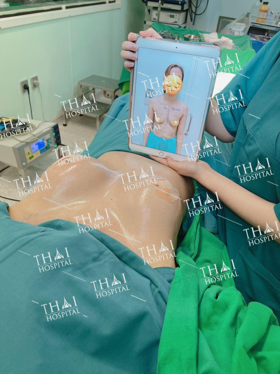 Khách hàng cảm thấy hài lòng sau khi tiến hành treo sa trễ tại THAI Hospital