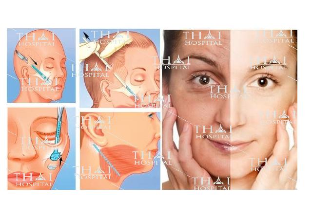 Chi tiết quá trình căng da mặt SMAS tại Thái Hospital