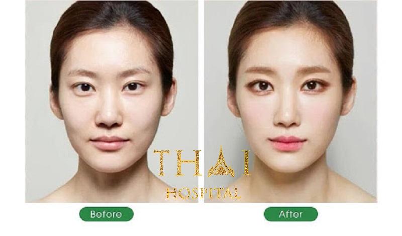 Khách hàng thực hiện cấy mỡ toàn mặt tại Thẩm mỹ Thái Hospital