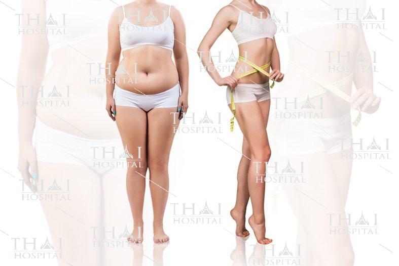 Combo hút mỡ bụng và rời rốn dành cho những người có khuyết điểm bụng mỡ nhiều