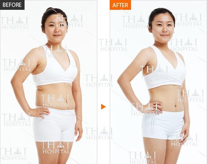 Hình ảnh khách hàng trước và sau khi thực hiện combo hút mỡ bụng và rời rốn tại Thái Hospital