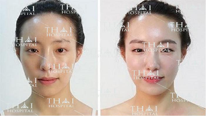 Phương pháp cấy mỡ mặt giúp khuôn mặt trở nên trẻ trung hơn