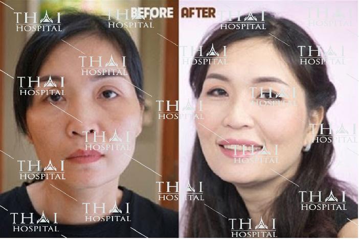 Cấy mỡ toàn mặt giúp khuôn mặt trở nên đầy đặn, phúc hậu hơn