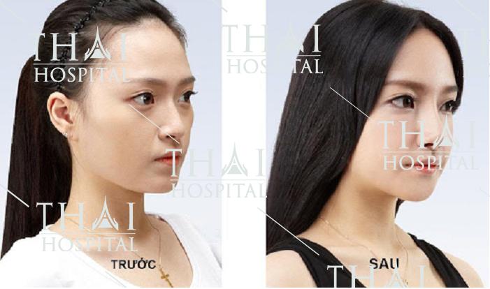 Hình ảnh khách hàng trước và sau khi nâng mũi bọc sụn Megaderm tại Thái Hospital