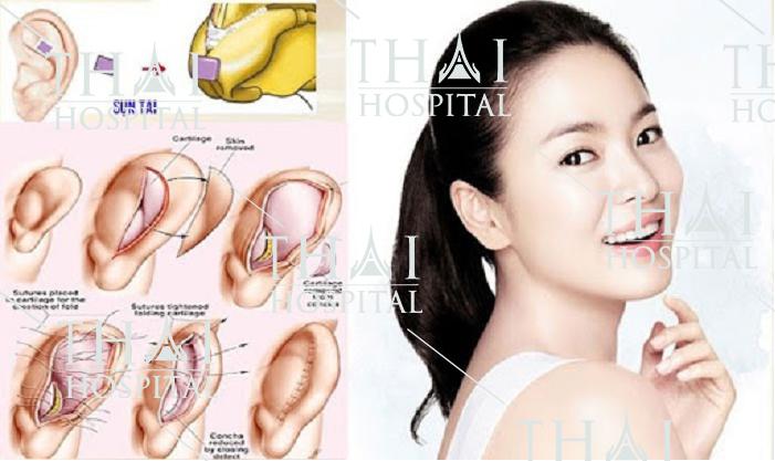 Kỹ thuật bóc tách sụn tai được sử dụng khá phổ biến