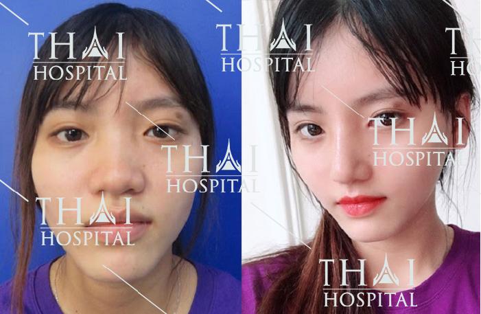Góc nghiêng sang chảnh của khách hàng sau khi nâng mũi cấu trúc tại Thái Hospital