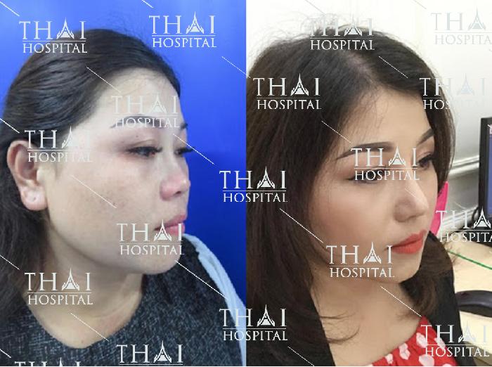 Hình ảnh khách hàng trước và sau khi nâng mũi cấu trúc mới tại Thái Hospital