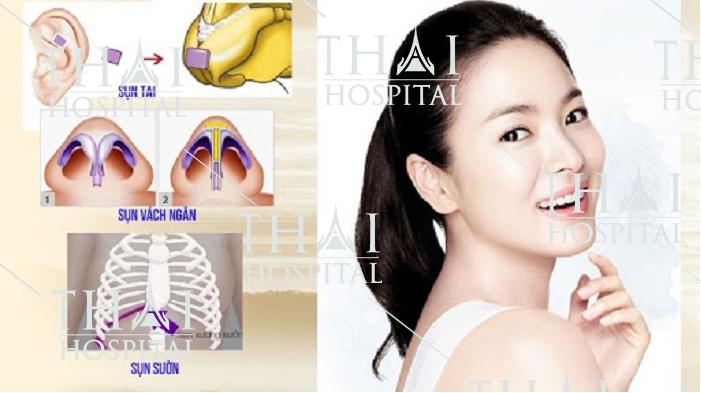 Ưu điểm trong công nghệ nâng mũi cấu trúc tại Thái Hospital