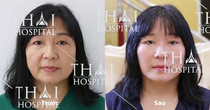 Căng da SMAS đem lại hiệu quả trẻ hóa làn da ngay tức thì