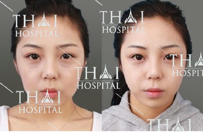 Kỹ thuật trẻ hóa làn da giúp chị em phụ nữ trẻ lại từ 5 - 7 tuổi