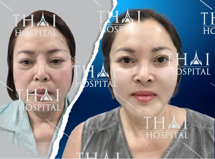 Kỹ thuật căng da mặt giúp khắc phục mọi khuyết điểm lão hóa