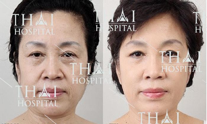 Căng da SMAS phù hợp với tất cả khách hàng có khuyết điểm da lão hóa