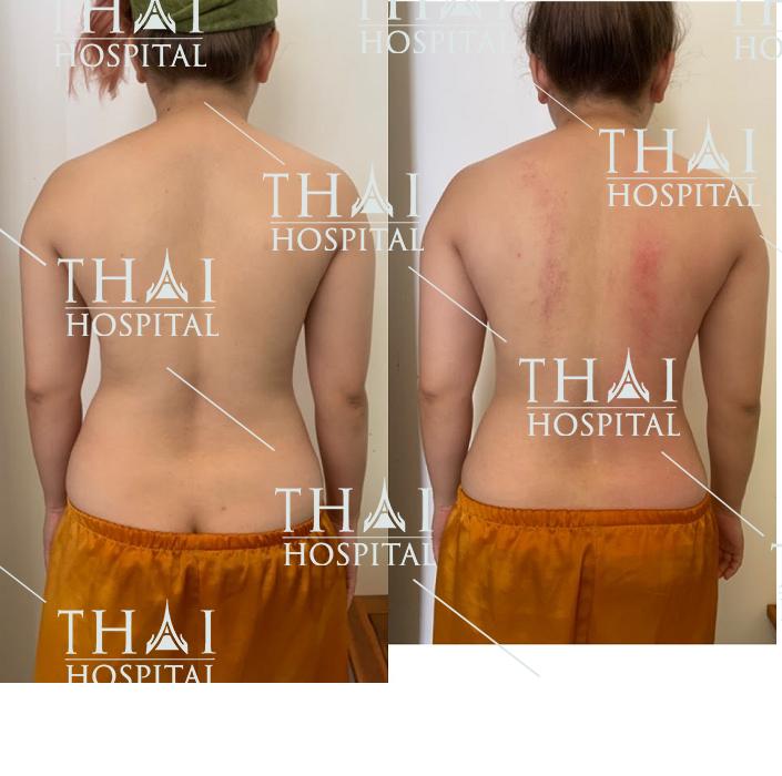 Hình ảnh khách hàng trước và sau khi hút mỡ vùng xoài lưng tại Thái Hospital