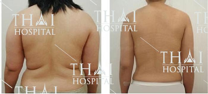 Hút mỡ vùng xoài lưng giúp bạn sở hữu vóc dáng thon gọn ngay lập tức