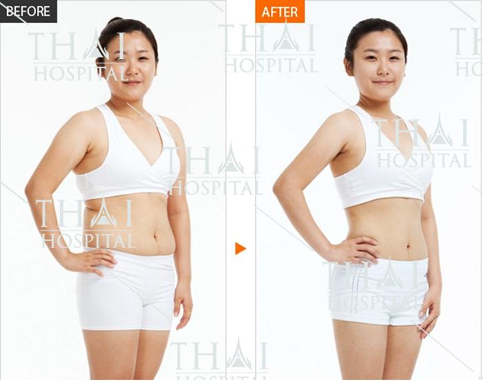 Thẩm mỹ Thái Hospital với công nghệ hút mỡ hiện đại, an toàn