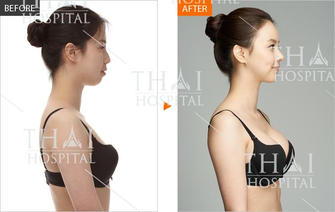 hình ảnh trước và sau nâng ngực