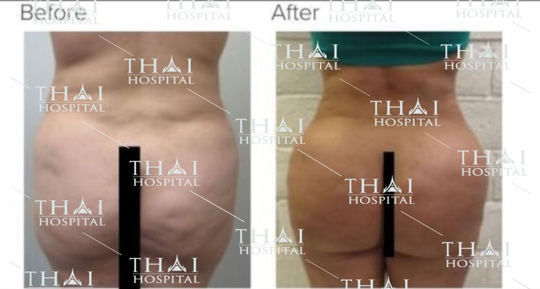 Hình ảnh khách hàng trước và sau khi nâng mông bằng mỡ tự thân