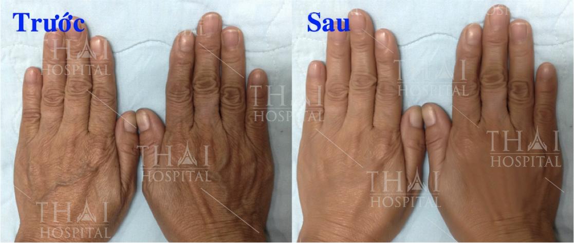 Hình ảnh trước và sau khi cấy mỡ mu bàn tay