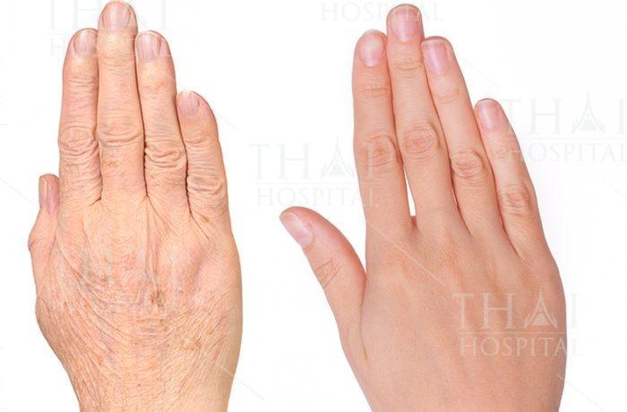 Bàn tay đẹp hơn sau khi thực hiện cấy mỡ mu bàn tay