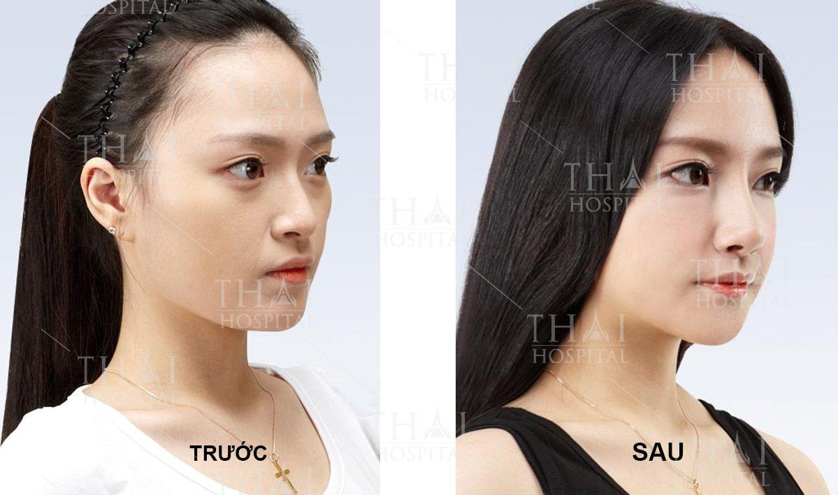 Hình ảnh khách hàng trước và sau khi nâng mũi cấu trúc sửa lại