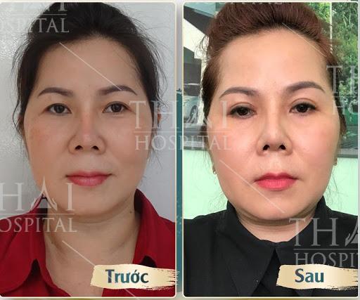Hình ảnh khách hàng trước và sau khi nâng cung chân mày